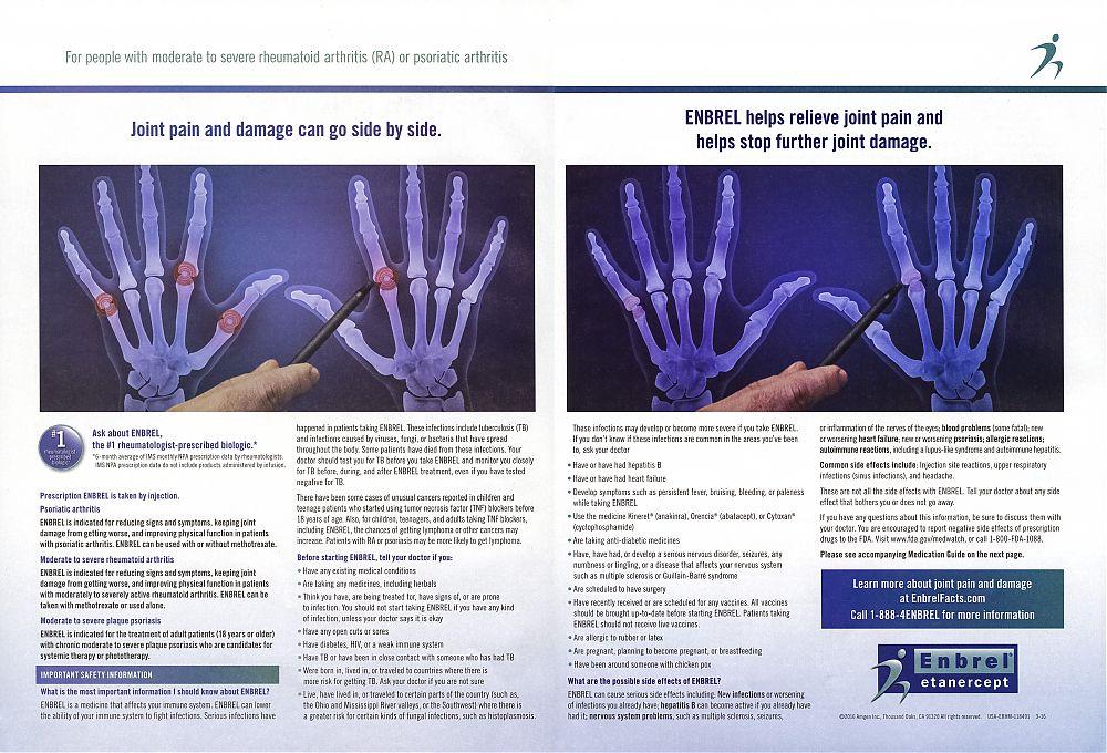 Rheumatoid arthritis enbrel
